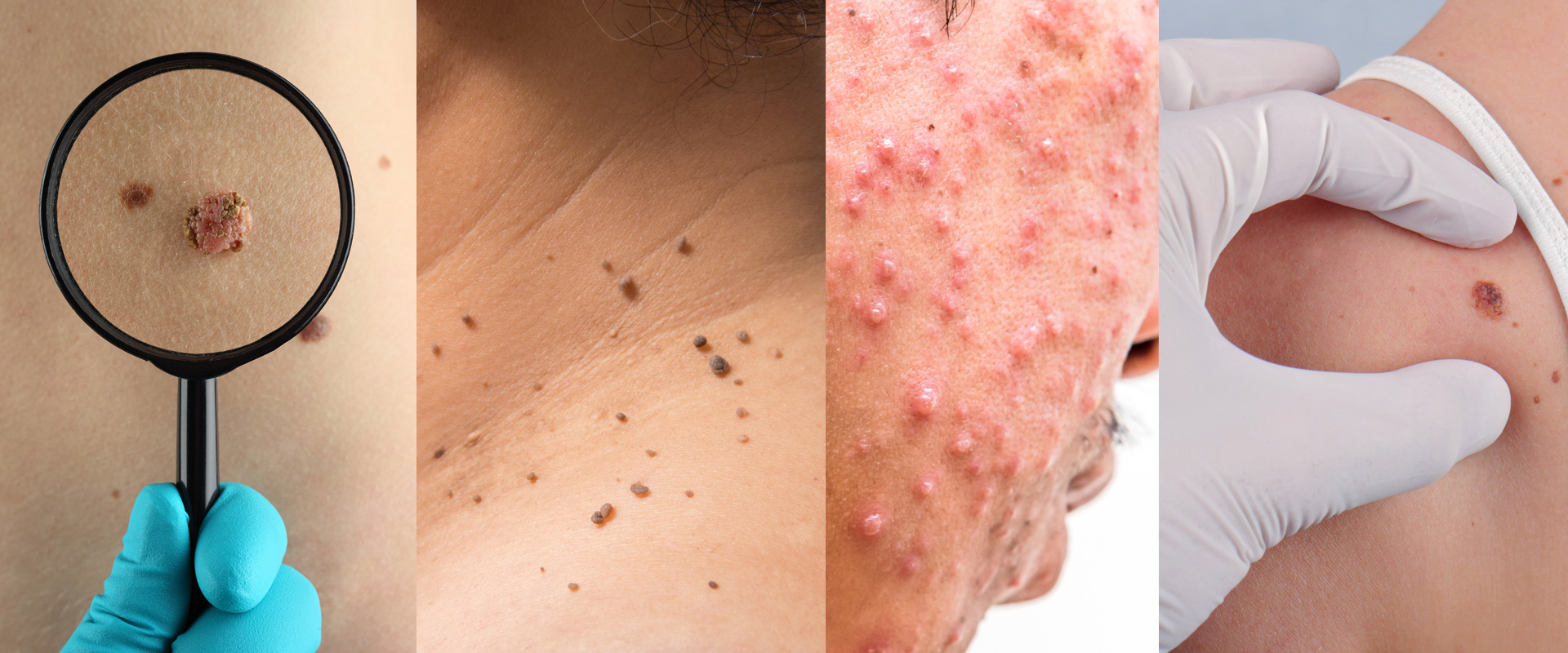 Dermatology | Skin Care